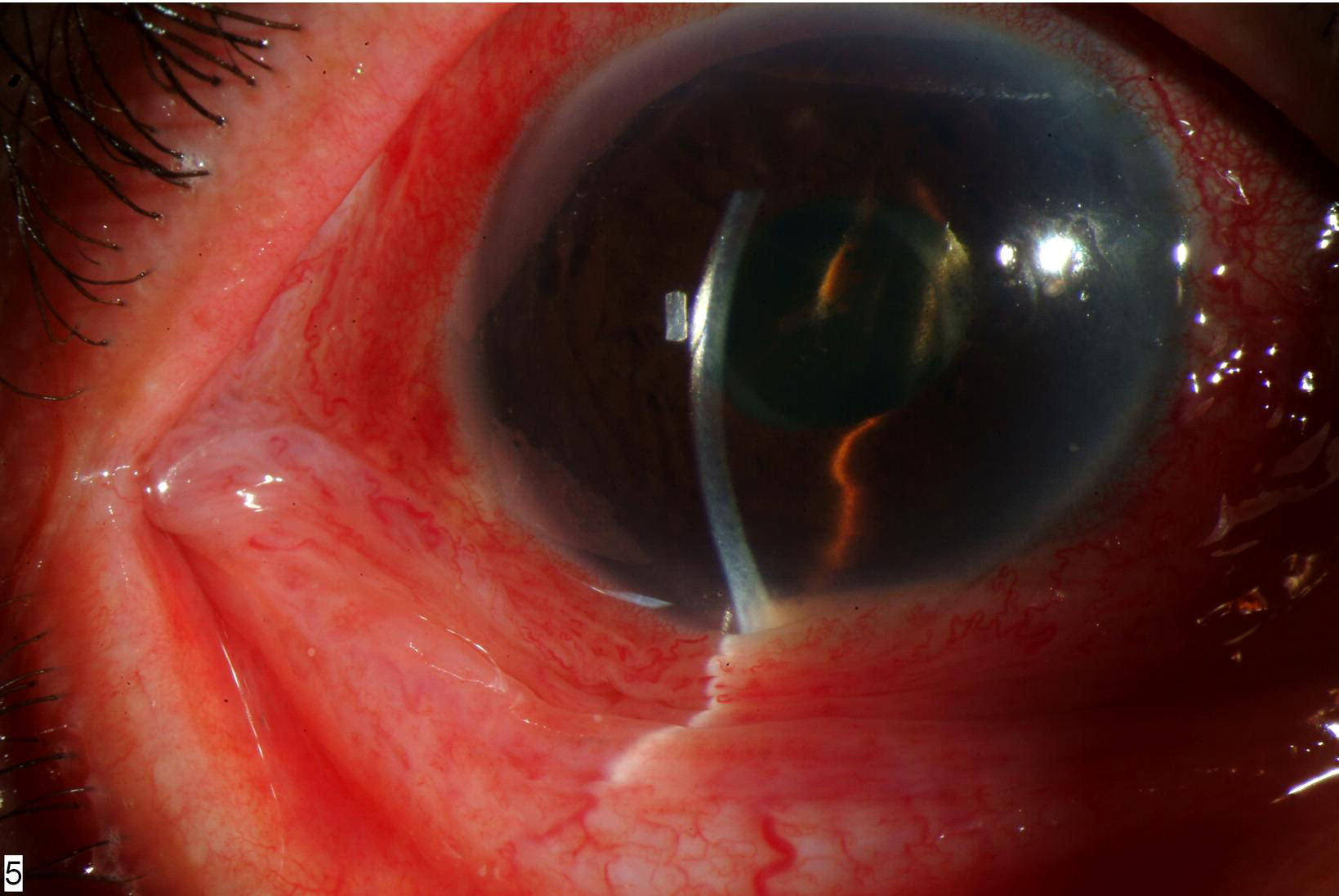 Endophthalmitis After Intravitreal Triamcinolone InjectionIntravitreal Injection Endophthalmitis