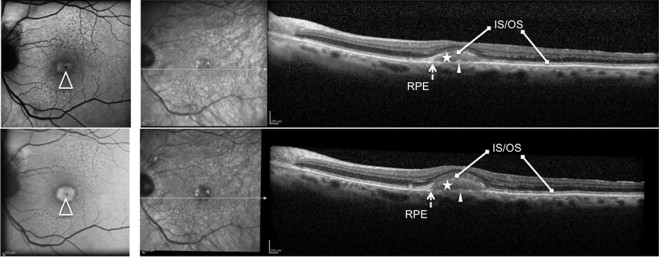 Natural Course Of Adult Onset Foveomacular Vitelliform