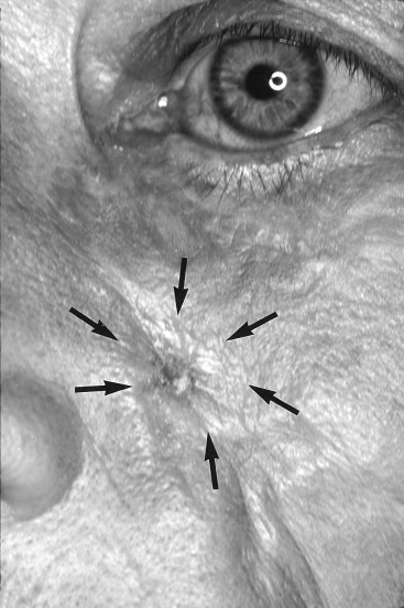 Excoriation of left facial plaen