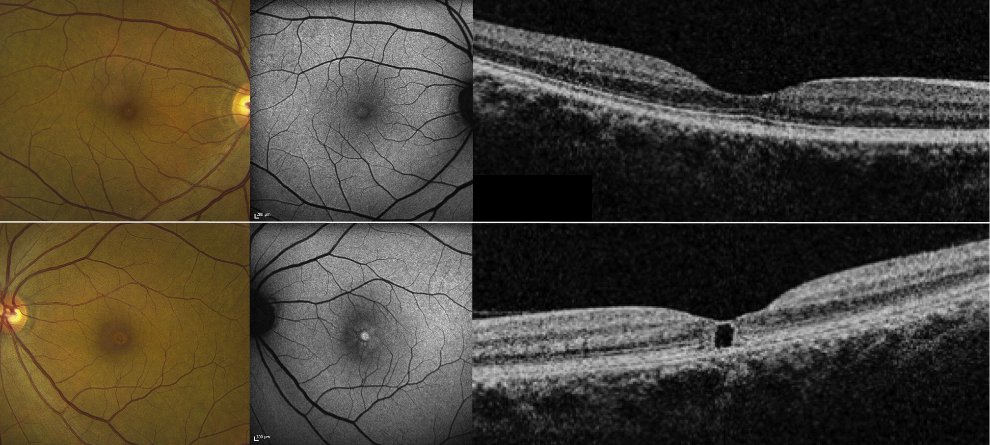 Pseudocystic Foveal Cavitation In Tamoxifen Retinopathy