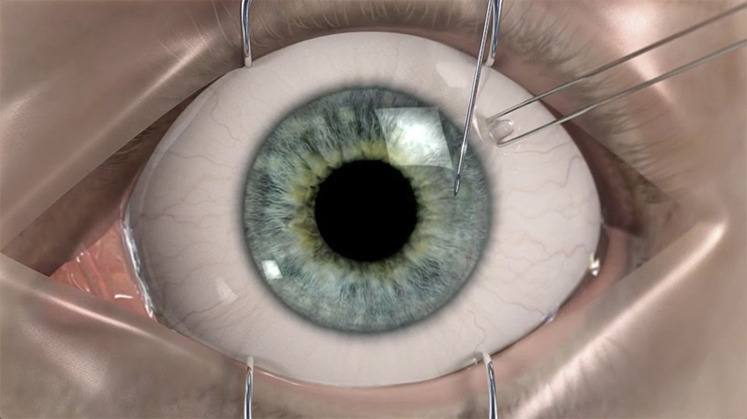 Bimatoprost Sustained Release Implants For Glaucoma