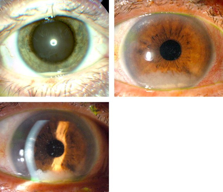 intravitreal steroid implants